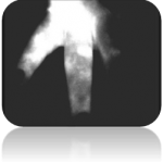 Image showing dermal backflow.